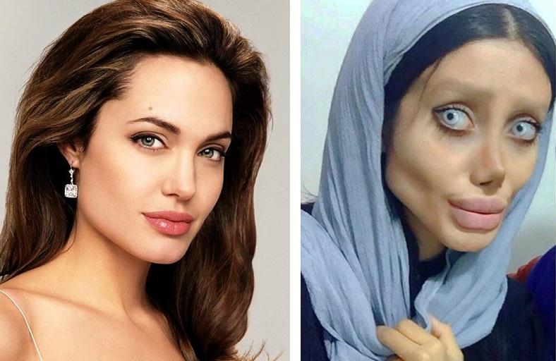 Иранка хотела быть похожей на Анджелину Джоли
