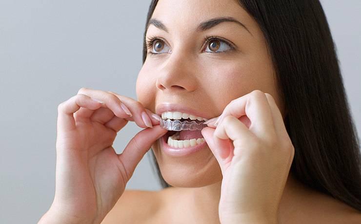 5 способов отбелить зубы в домашних условиях