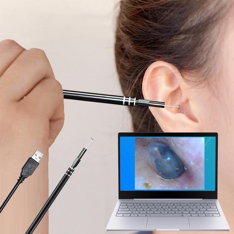 Эндоскоп для ушей
